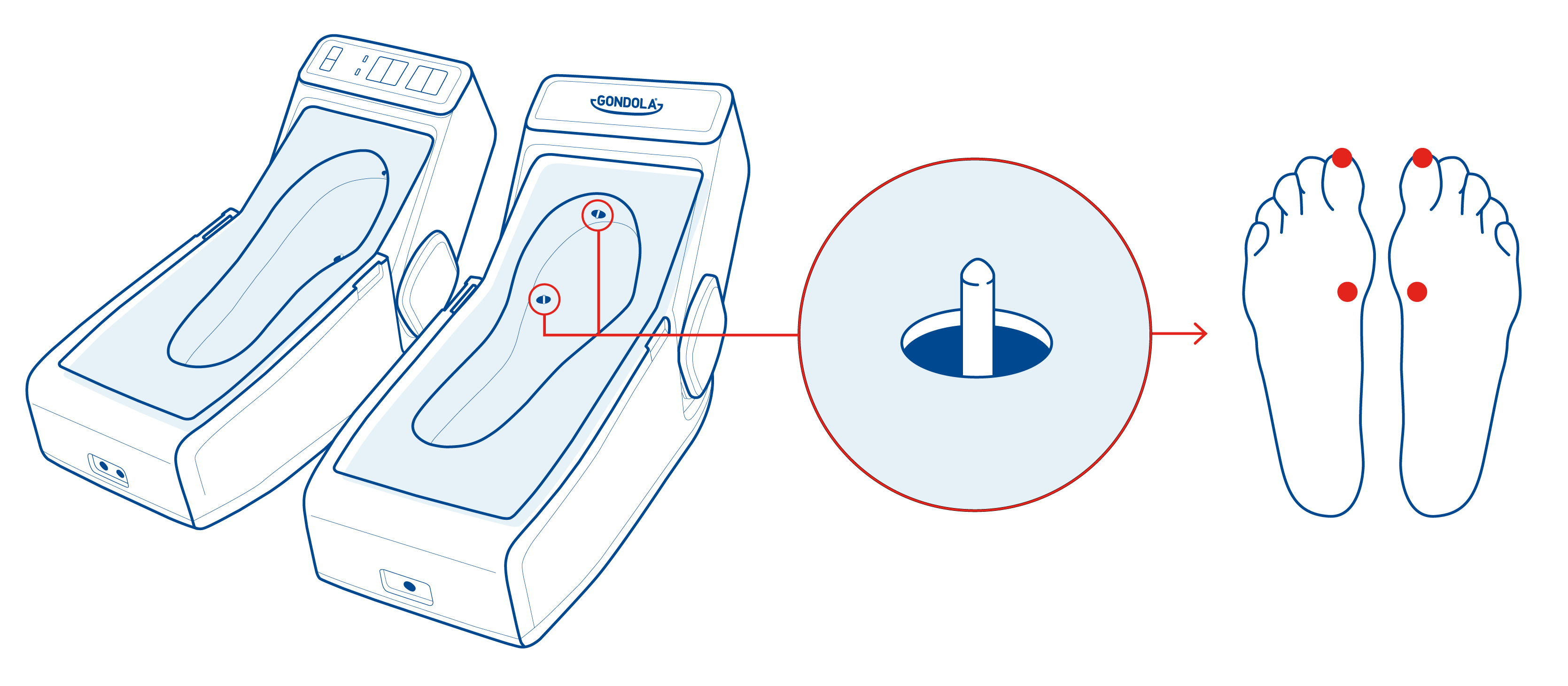 Gondola Therapeutic Device and how it works